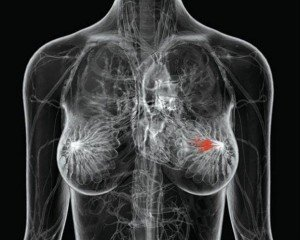Ενα γονίδιο που αποτελεί «κλειδί» για την εμφάνιση ...δύστροπων καρκίνων του μαστού, ανακάλυψαν αμερικανοί ειδικοί ανοίγοντας τον δρόμο για νέες θεραπείες